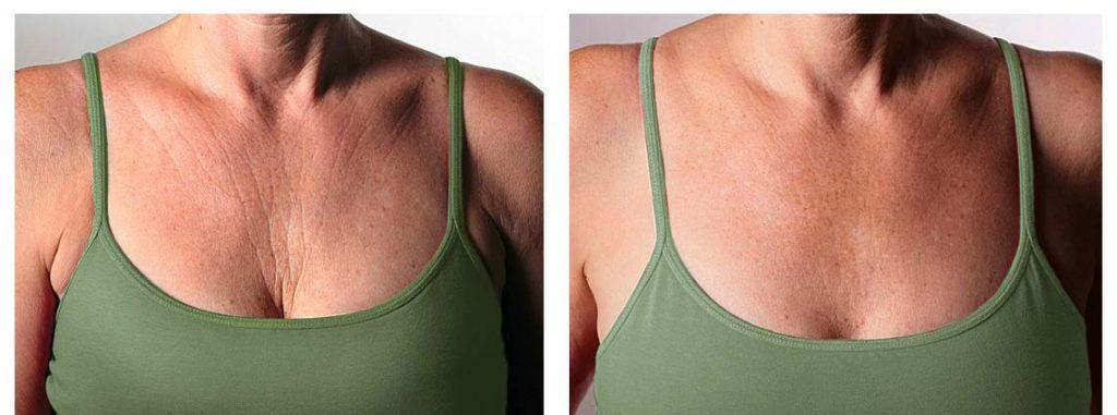 3 важливих ради косметолога по догляду за шкірою декольте у 40+