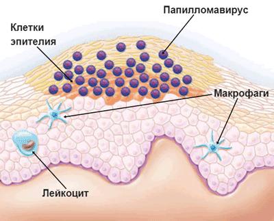 5 міфів про вірус папіломи людини