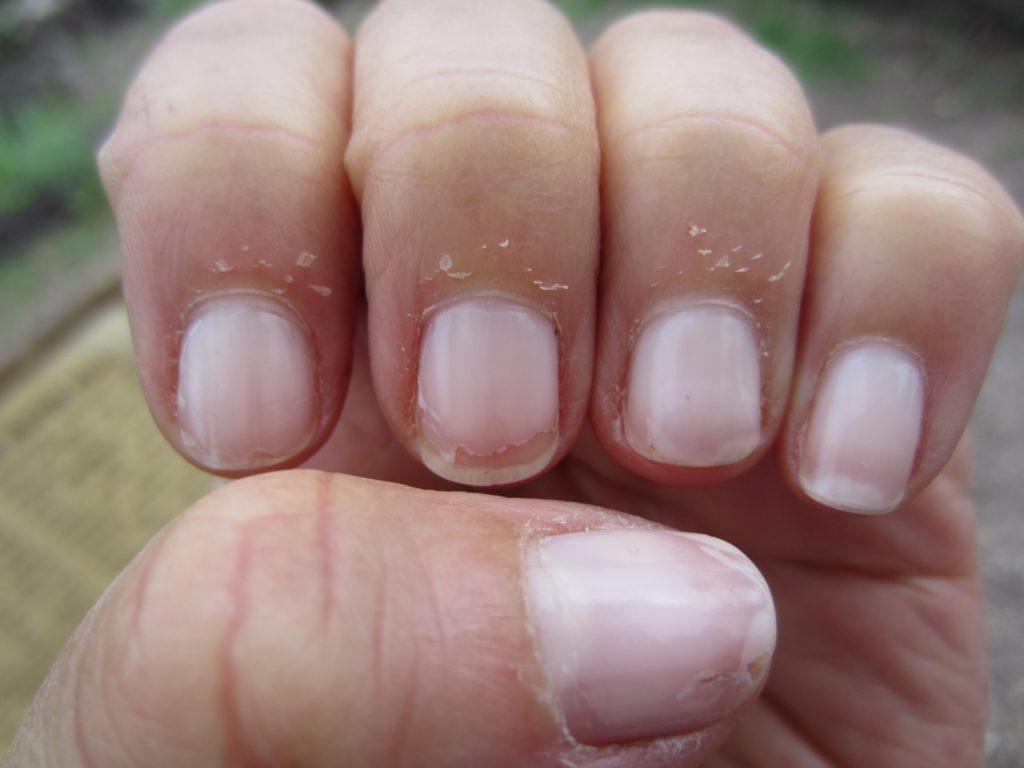 6 правил зроблять шкіру біля нігтів здоровою і без задирок