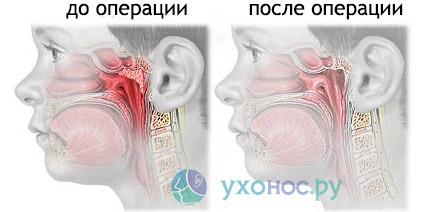 Аденоїдит хронічної форми