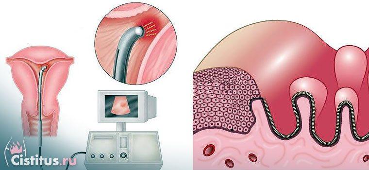 Аденоматоз матки – що це таке?