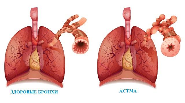 Алергічна астма – причини, симптоми і лікування