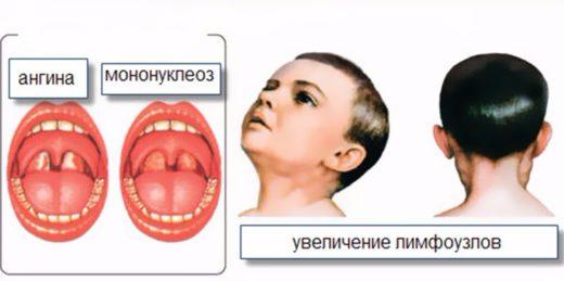 Ангіна у дітей симптоми важливі особливості діагностика