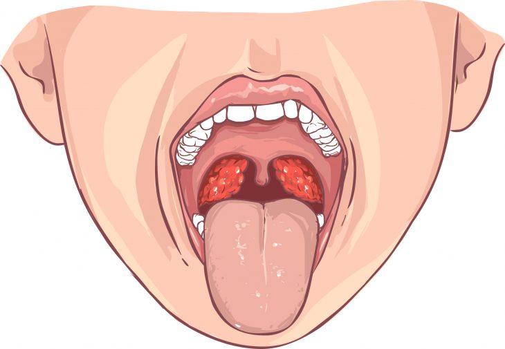 Бактеріальний тонзиліт лікування