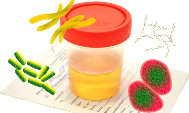 Бактерії в аналізі сечі