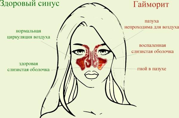 Чим і як промивати ніс при нежиті способи і розчини для промивання