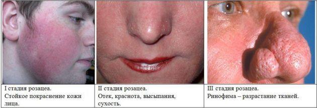 Чому червоніє ніс і як це лікується
