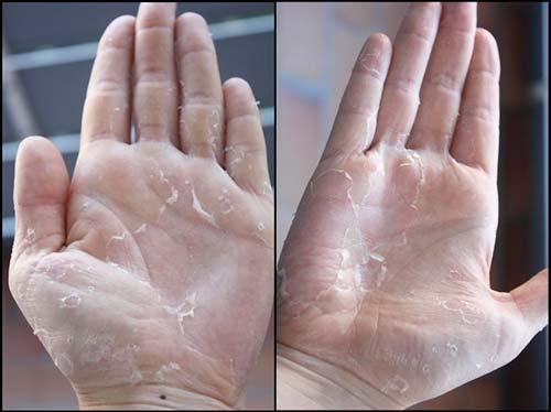 Чому навесні лущиться шкіра на обличчі – правильний догляд