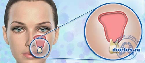 Чому при гаймориті болить верхня щелепа і зуби, що робити