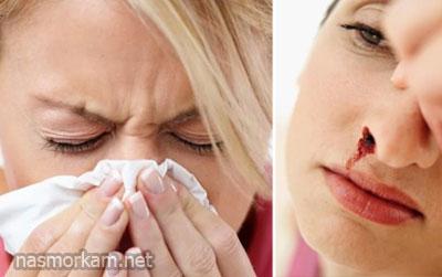 Чому в носі утворюються кров'яні скориночки