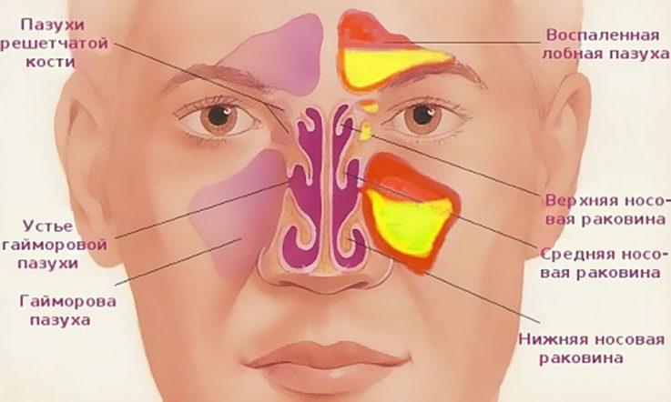 Діагностика та лікування гаймориту До чиєї компетенції це відноситься