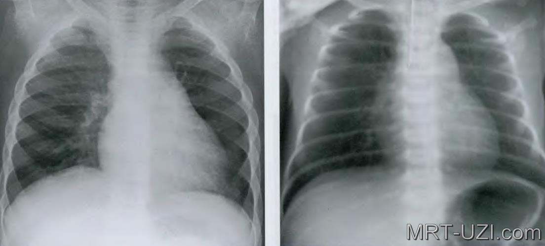 Де і як часто можна робити рентген легенів дитині