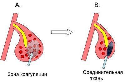 Дихальна гімнастика при вазомоторний риніті
