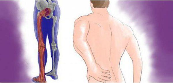Дискогенна і спондилогенних люмбоішіалгія поперекового відділу хребта ліворуч і праворуч: симптоми і лікування в домашніх умовах, препарати. Код за мкх 10. Синдром люмбоішіалгії