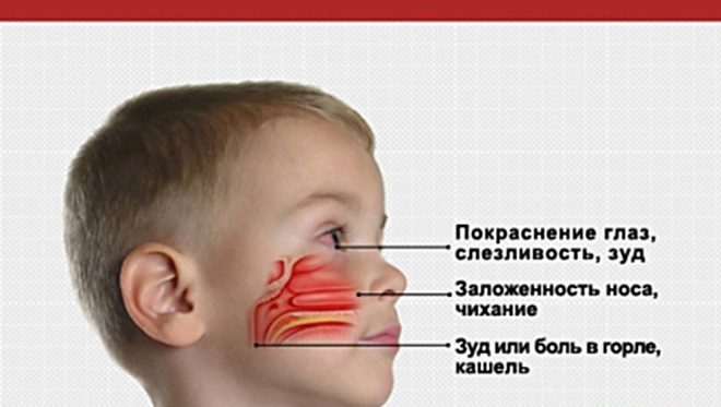 Доктор Комаровський про лікування нежиті коли потрібно, а коли не слід усувати виділення