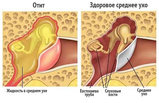 Дзвін у вухах, причини і лікування