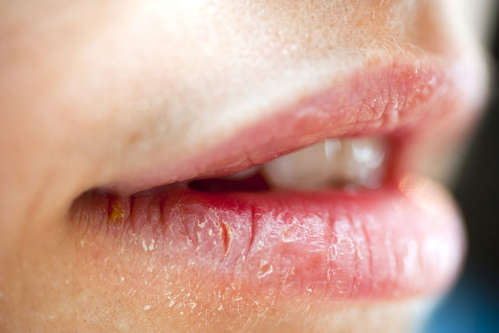 Ефірні олії для захисту губ – що найефективніше?