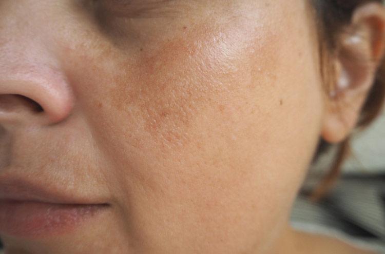 Ефективні домашні засоби від вікової пігментації шкіри