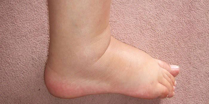 Ефективні народні засоби від варикозу вен на ногах