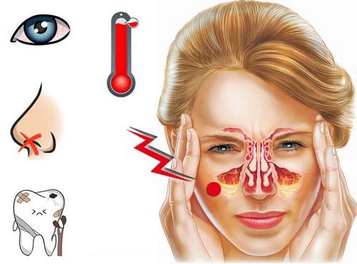 Ефективні та доступні народні способи лікування гаймориту