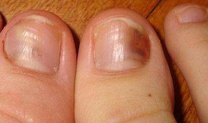 Ефективне лікування грибка нігтів народні засоби