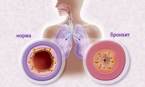 Ефективне лікування кашлю нашатирно-анісові краплі