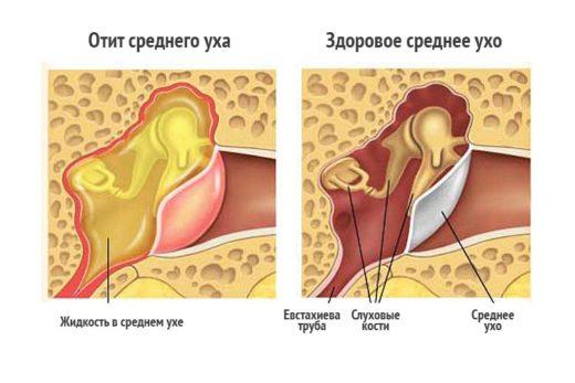Ексудативний отит: симптоми і лікування у дитини і дорослого і його форми