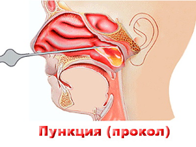 Фізіопроцедури і фізіотерапія при гаймориті