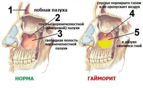 Фізіопроцедури при гаймориті: види процедур