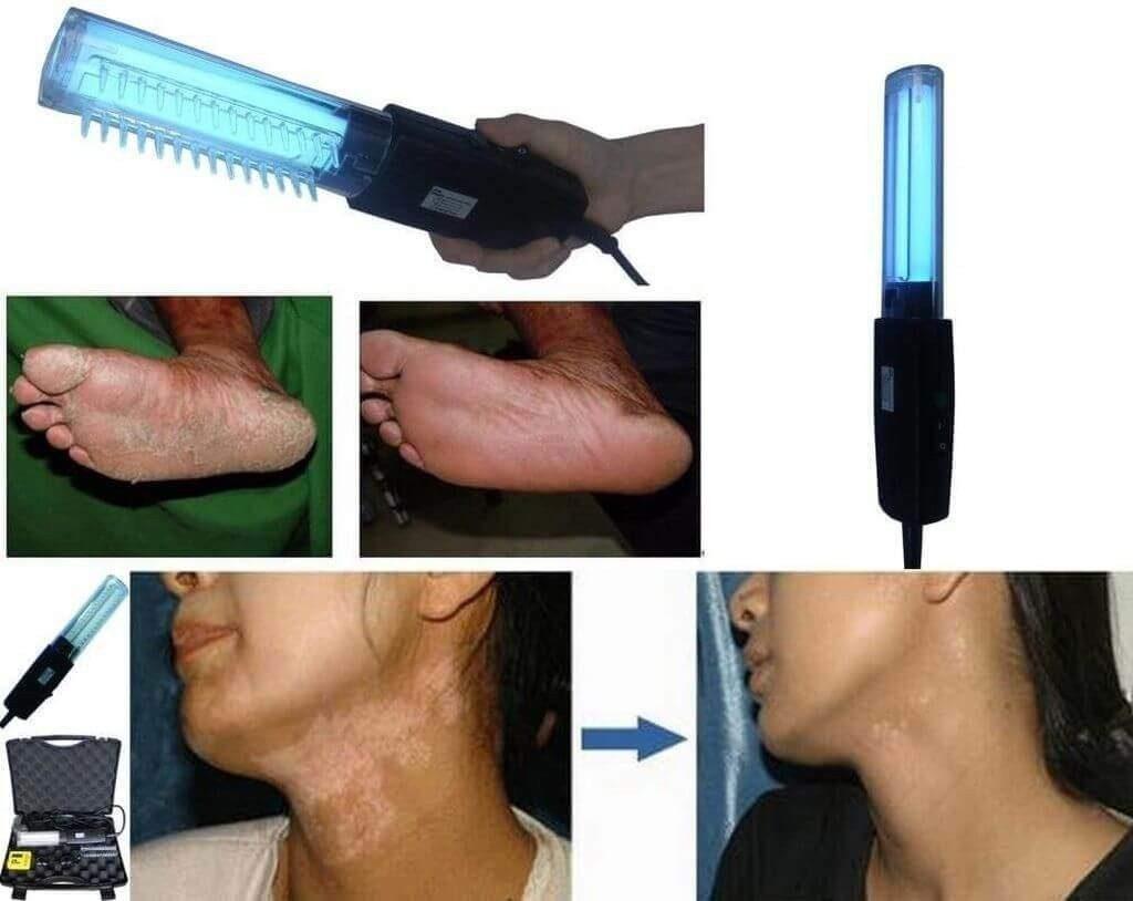 Фототерапія – ефективний метод лікування псоріазу