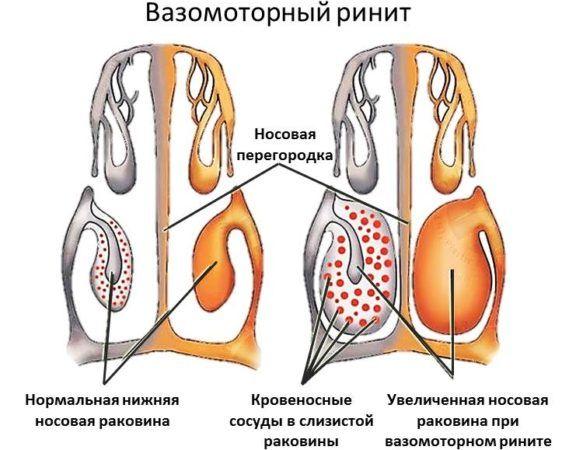 Гіпертрофічний риніт – симптоми і лікування