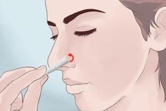 Гайморит лікування в домашніх умовах