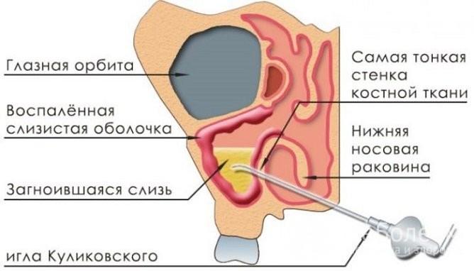 Гайморит наслідки процедури по проходу пазухи
