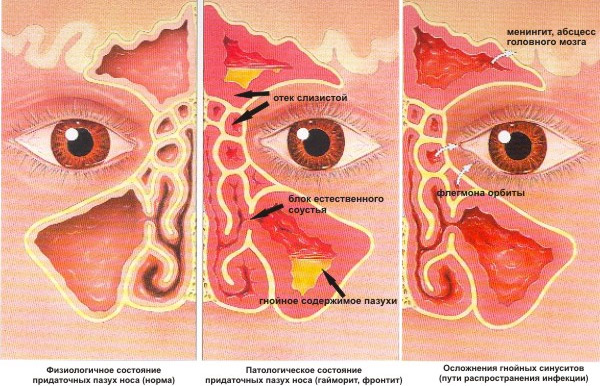 Гайморит особливості симптоми методи лікування