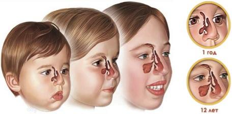 Гайморит симптоми у дітей 5 років