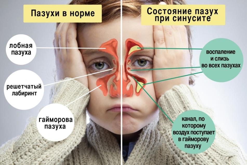Гайморит у дітей симптоми і лікування. Залишкові явища після гаймориту. Як лікувати гайморит у дітей в домашніх умовах?