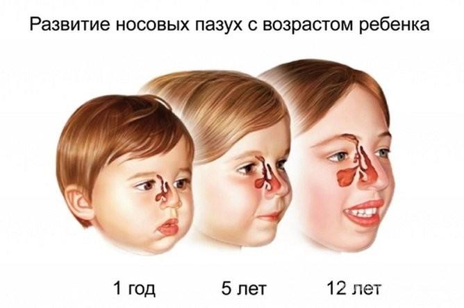 Гайморит у дітей симптоми причини лікування і профілактика
