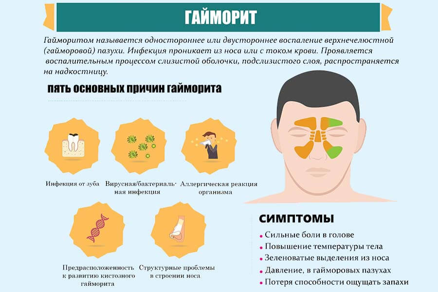 Гайморит у дитини методи лікування симптоми і профілактика