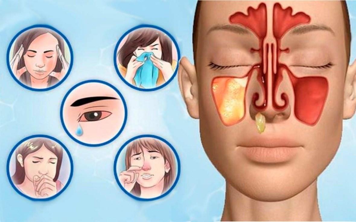 Гайморит у дорослих: симптоми, лікування, антибіотики. Чим лікувати гайморит
