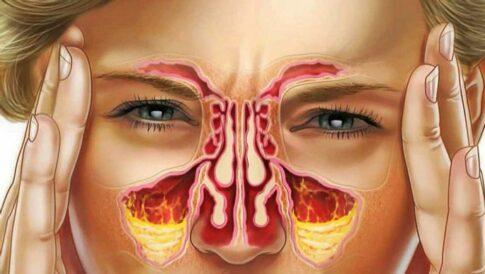 Гайморит види симптоми і методи лікування