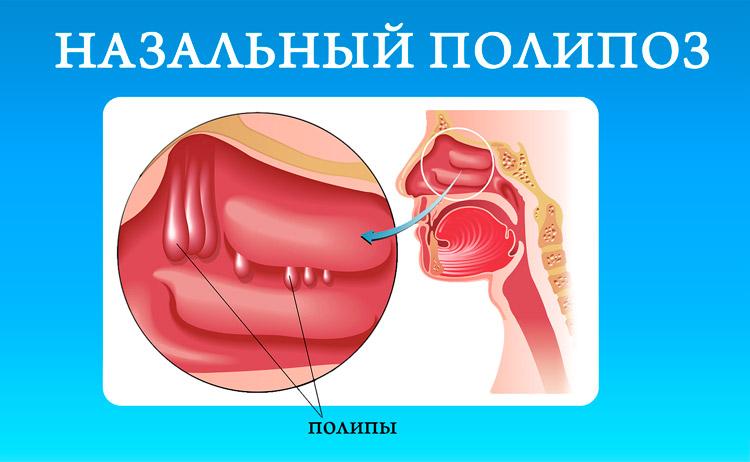 Гній з носа небезпечний симптом