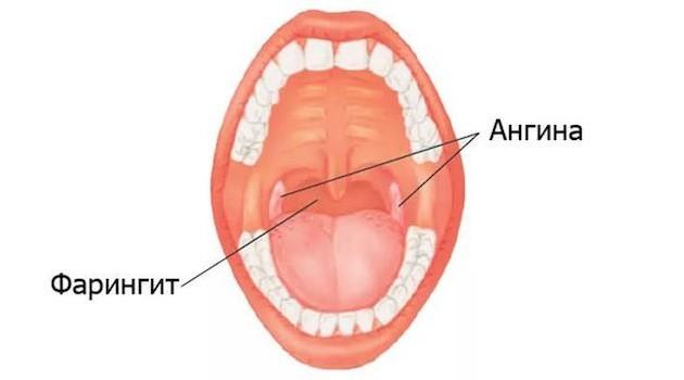 Головний біль і біль у горлі: можливі причини недуг