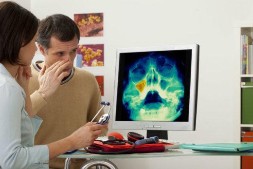 Гострий двосторонній гайморит і катаральний: симптоми і лікування