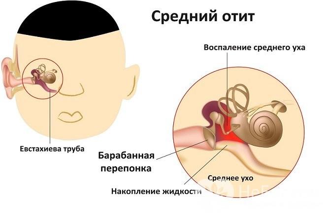 Гострий гнійний отит стадії симптоми і лікування захворювання