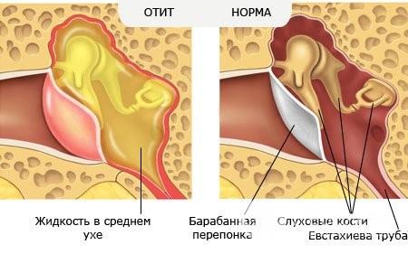 Гострий катаральний середній отит у дитини