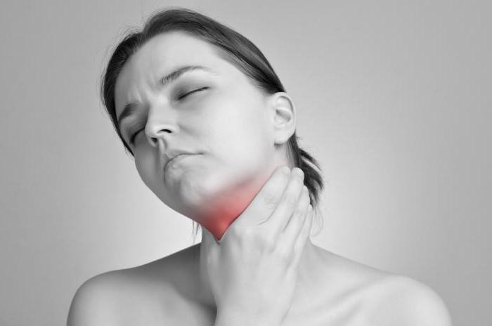 Гранулезный фарингіт основні симптоми недуги