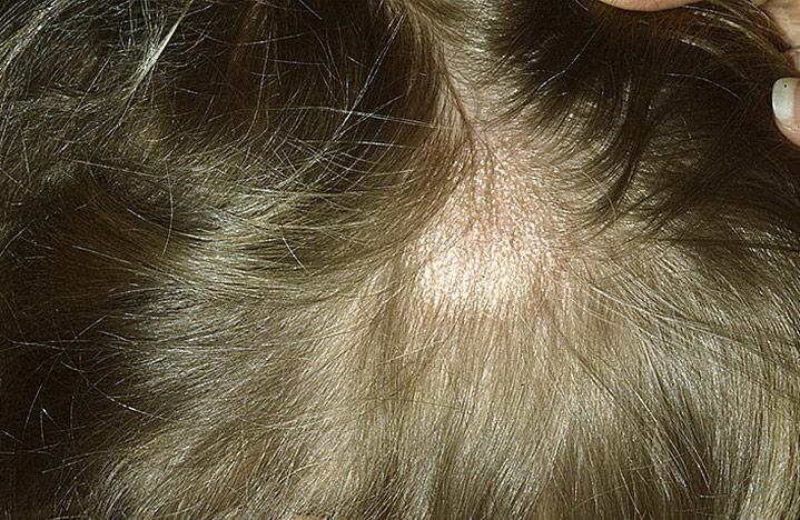 Хвороби волосистої частини голови – які можна лікувати самому, а які тільки під наглядом лікаря
