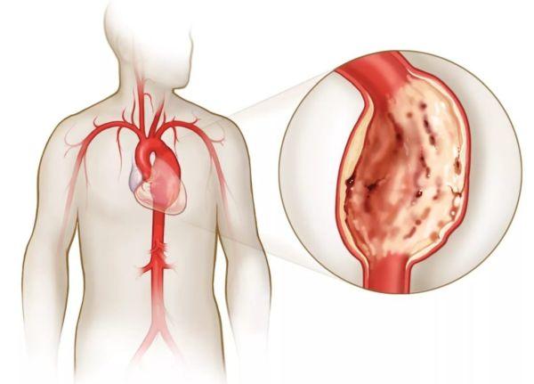 Кальциноз серця зсмк. Ефективні народні засоби від кальцинозу клапанів аорти і серця.