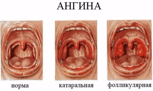 Катаральна ангіна, її симптоми та лікування