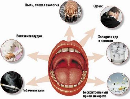 Катаральний фарингіт лікування і профілактика